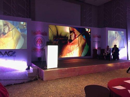 UniCondylar Knee Replacement- Dr Saraf|Dr. Saraf's Joints Clinic|Karve Road ,Pune