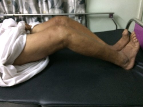 severe varus and flexion deformity Dr. Saraf's Joints Clinic Karve Road ,Pune